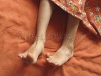 синдром-беспокойных-ног-причины