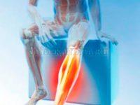 судороги-ног-упражнения