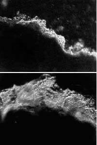 H.pylori-способстувует-раку
