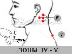 zona-umanskoj-IV-V